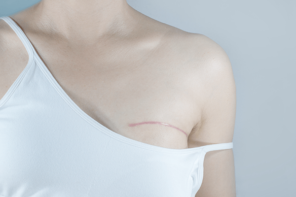 Closeup of a woman in a white tank top with the left strap down revealing a surgical scar indicating breast cancer surgery